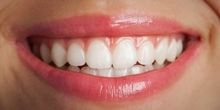 smartphone teeth whitening accessory close up smile