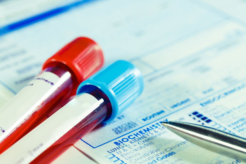 This scarily accurate blood test knows if you're going to die in the next decade