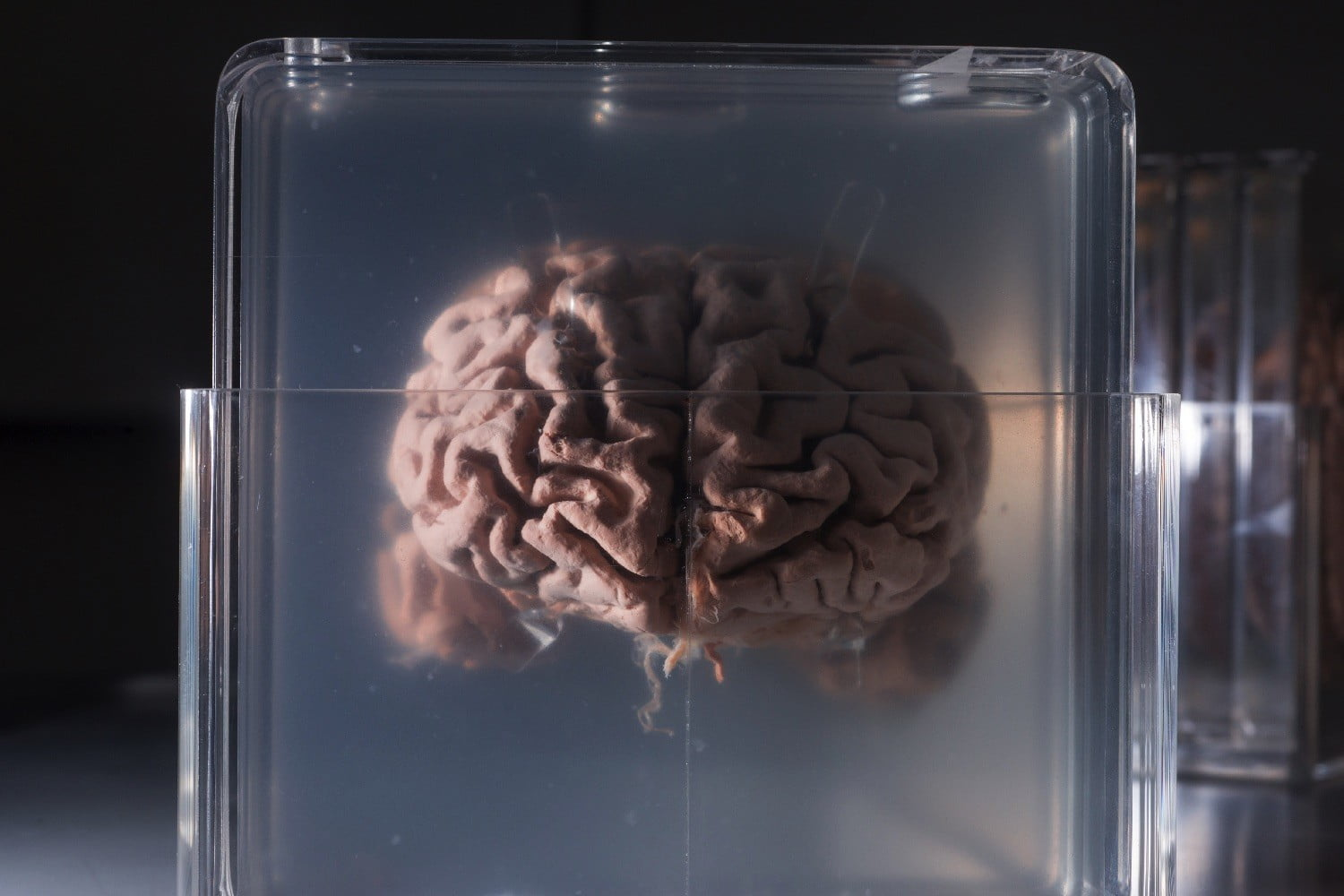 Doctors are fighting brain cancer by growing mini-brains to test treatments on