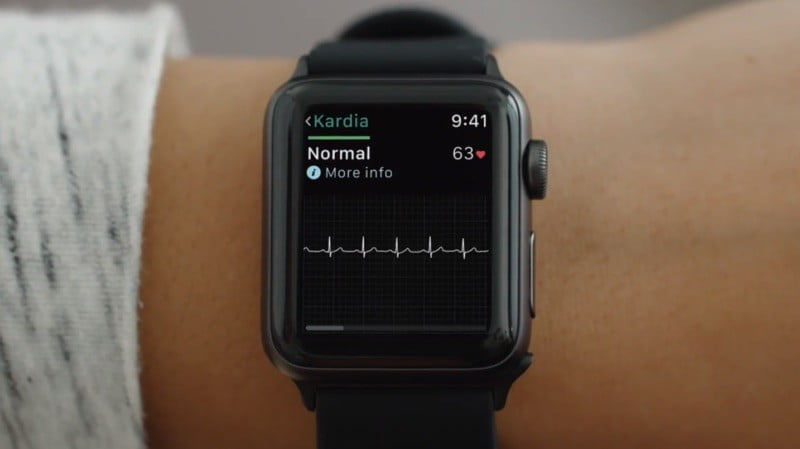 KardiaBand helps the Apple Watch inch closer to becoming a medical device