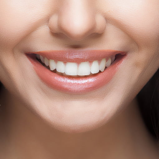 The Best Teeth Whitening Kits For 2020 Digital Trends