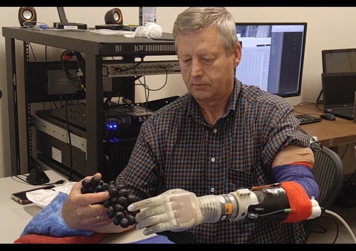 High-tech neuroprosthetic 'Luke' arm lets amputee touch and feel again