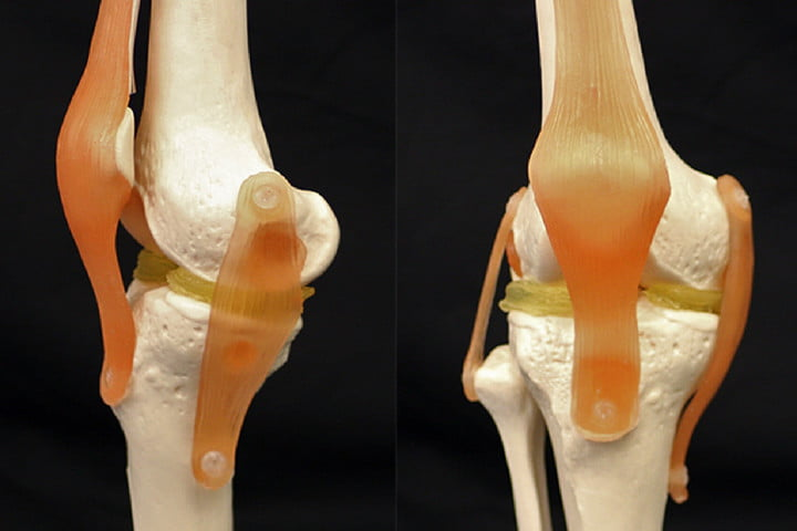 3D printing could help repair damaged knees with cartilage-mimicking hydrogel