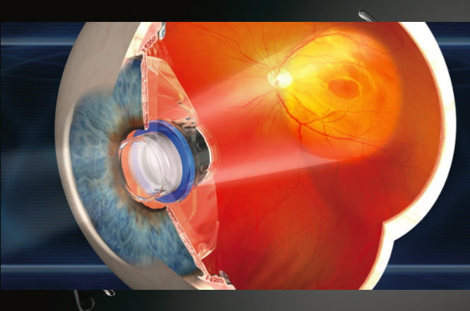 Miracle medical moment as legally blind man sees with bionic eye