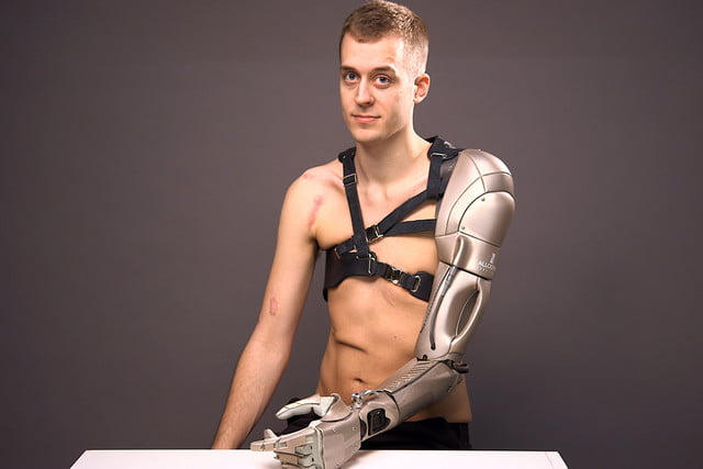 prosthetic arm boasts phone charger and drone 0002
