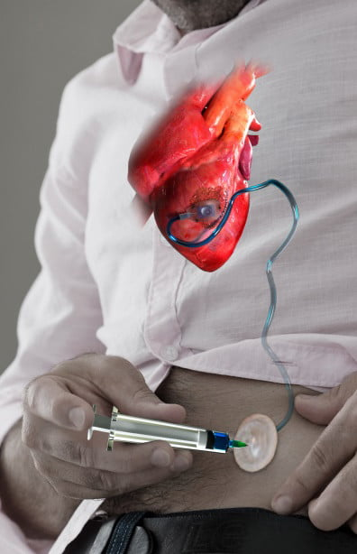 heart drug device therepi2